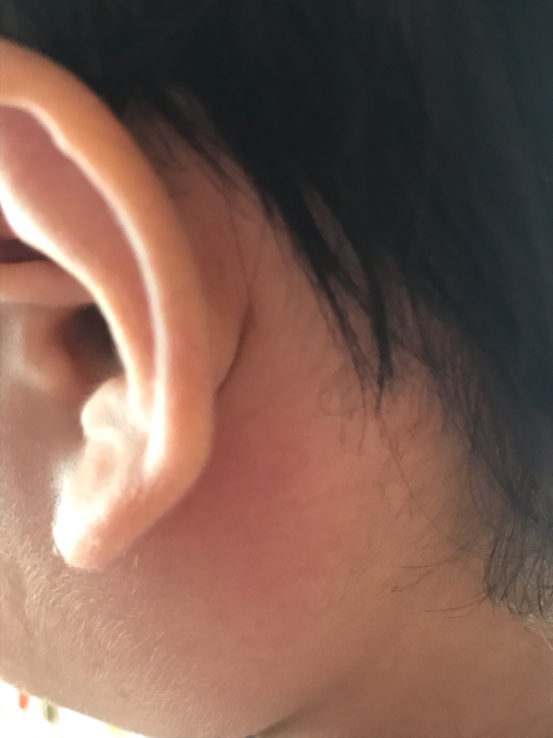 耳 の 後ろ 腫れ コロナ