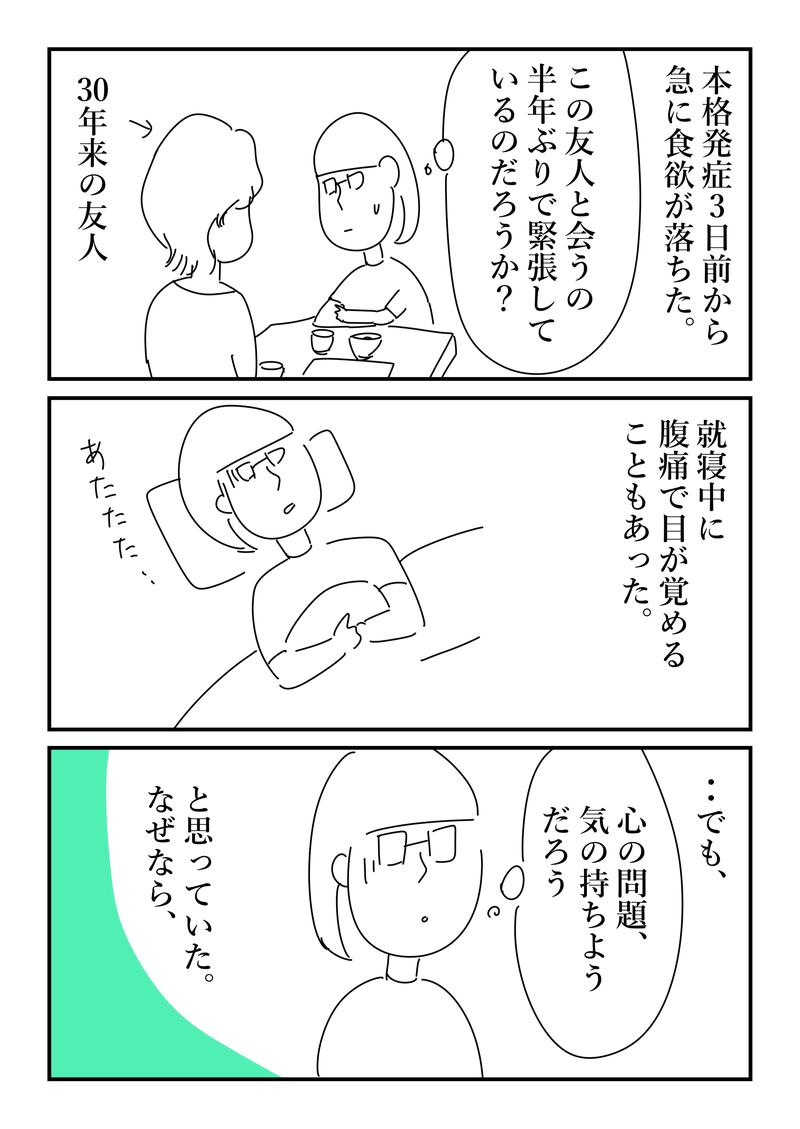 炎 大腸 憩室
