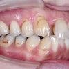 35歳 女性 凸凹が主訴 小臼歯4本抜歯 マルチブラケットによる2年4カ月の治療が終了しました。の画像