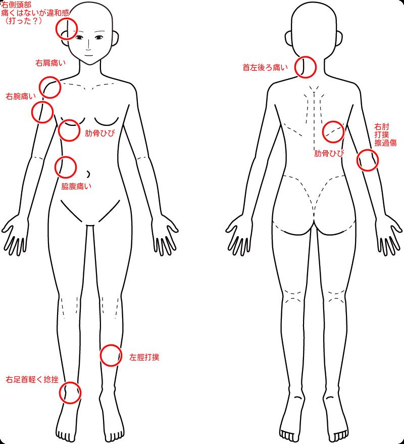 下 痛い の 脇腹 肋骨 右