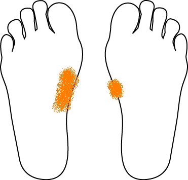 足 の 裏側 が つる 足がつるだけでなく、足の裏がつるのはなぜ?対処方法とは?