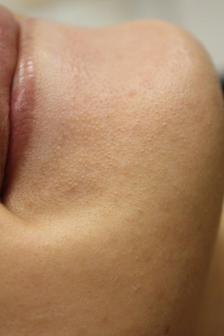 顎 白い ぶつぶつ 唇の下の窪みの小さい白いぷつぷつの改善方法