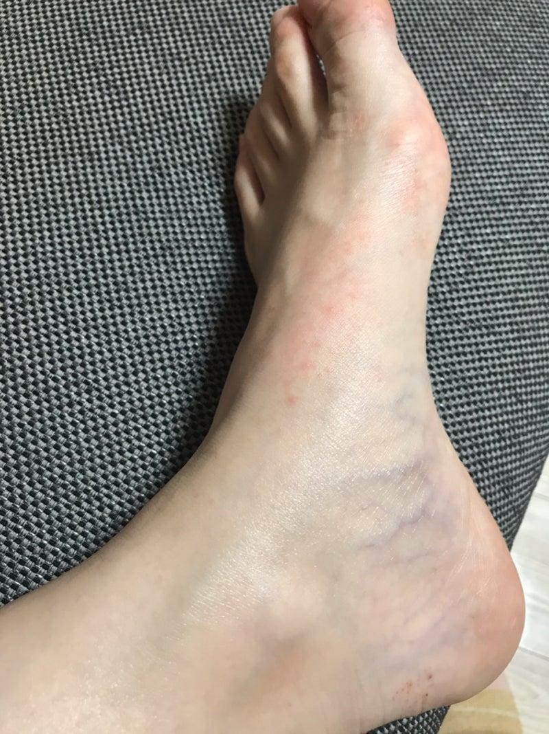 痒い 足 の 裏