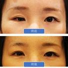 凹んだ眼球も治します - 眼窩骨折の治療⑤の記事より