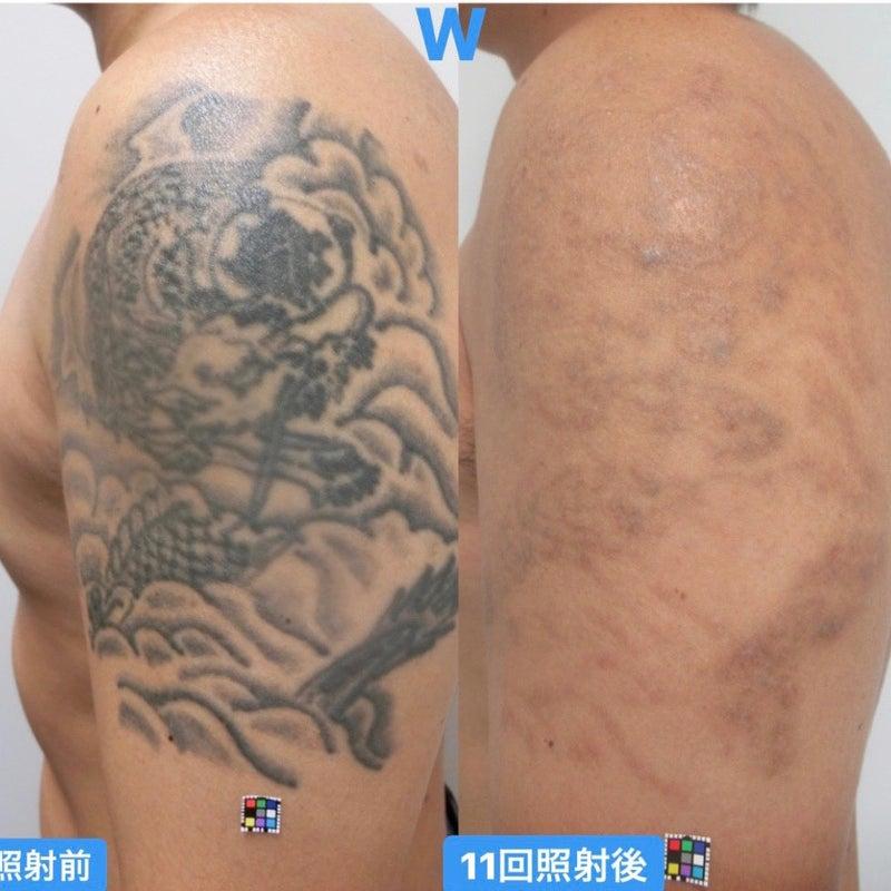 タトゥー除去 人気記事 一般 アメーバブログ アメブロ