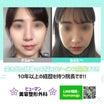 【韓国整形】頬骨縮小術で弛みが起こる??