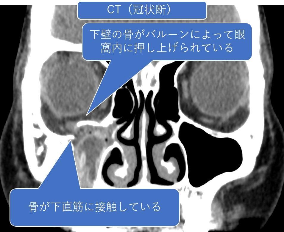 手術後に目が動かない眼窩骨折①の記事より