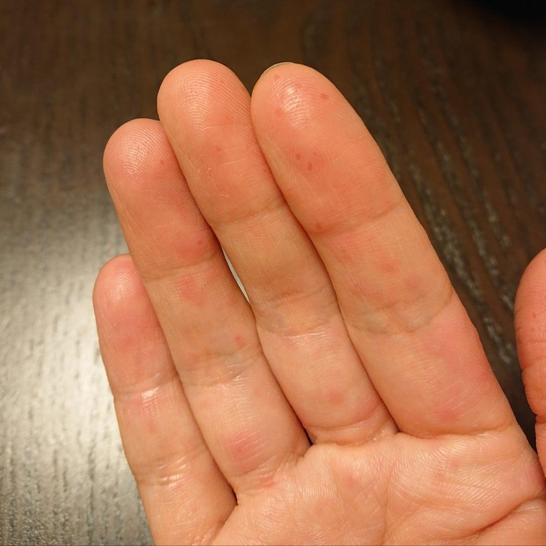 手足 口 病 皮 むけ 手足口病の大人症状 画像(4日目以降)が痛々しい、皮がすべてむける