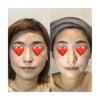 光リフトアップフェイシャルで小顔に モニター募集の画像