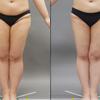 太もも全周のベイザー脂肪吸引・20代女性・『BMI 30』・医療ダイエットの画像