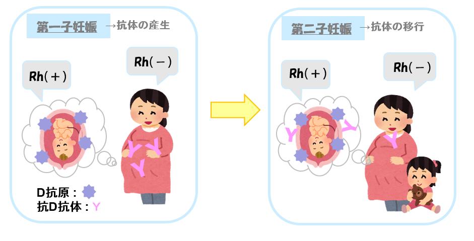 Rh不適合妊娠について