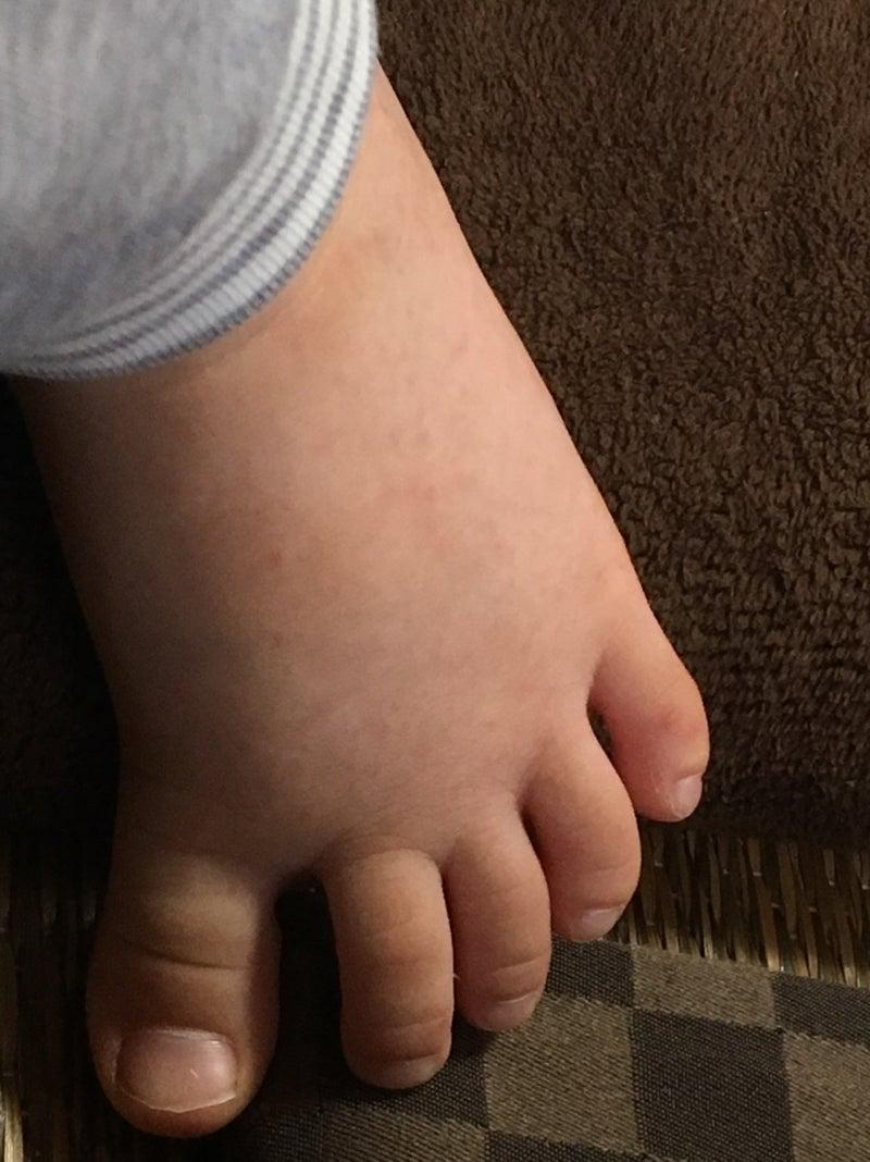 手足 口 病 歯磨き