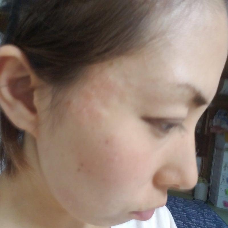 治ら ない 湿疹 顔