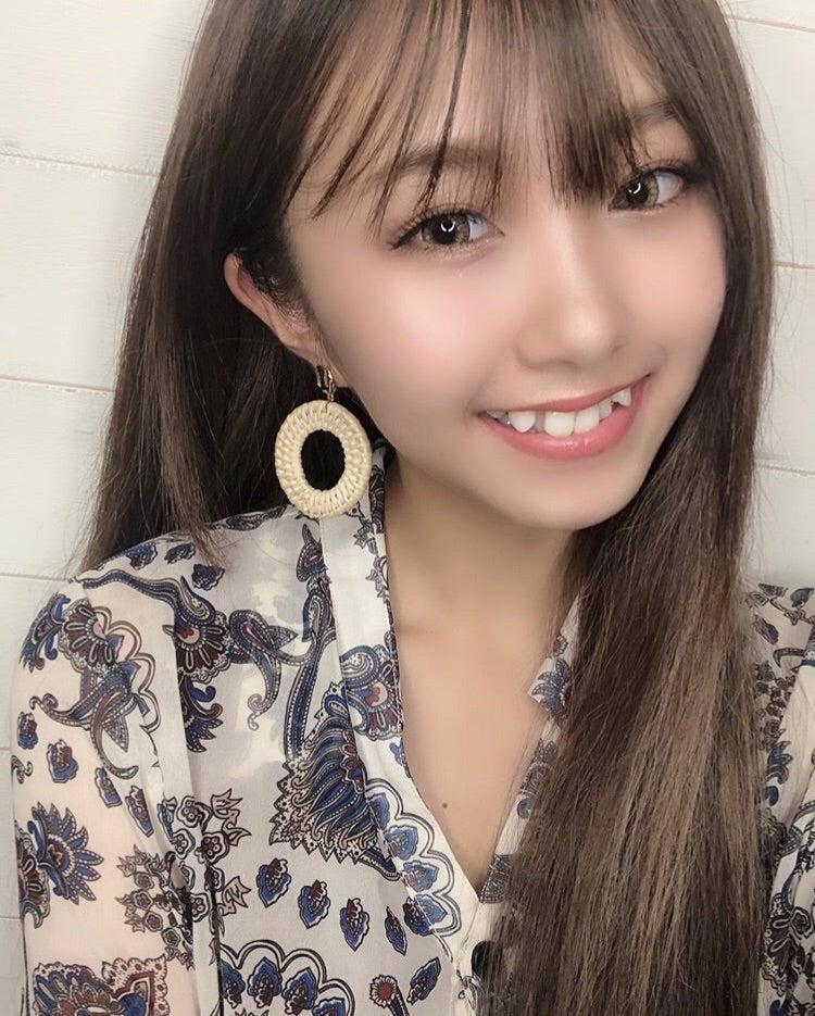矯正始めました! | れいたぴ(山田麗華)オフィシャルブログ Powered ...