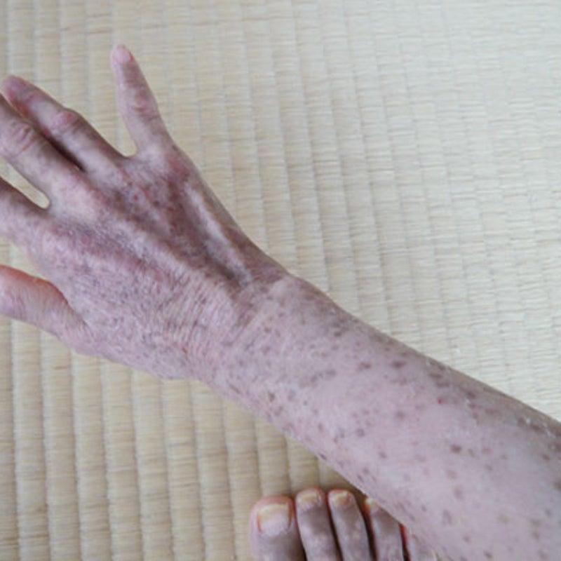 最期 骨髄 異 形成 症候群 の
