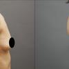 コンデンスリッチ豊胸・アラフォー女子・BMI 20・太もものベイザー脂肪吸引の画像
