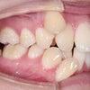 22歳 女性 凸凹が主訴 犬歯4本・親知らず4本計8本抜歯・ブラケットにて治療が終了しました。の画像