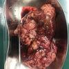 巨大肝臓腫瘍の摘出!!の画像