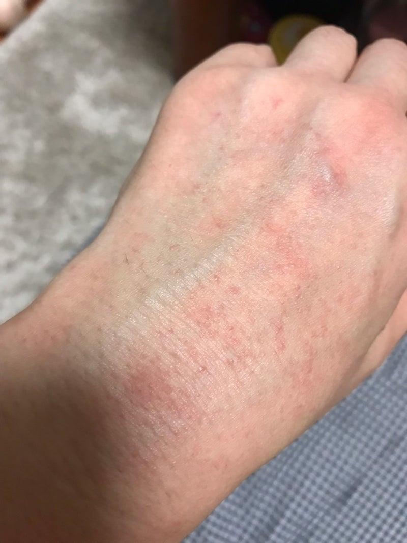 手の甲 が 赤い