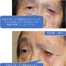 他院手術後の再手術 難治な方々⑥ 顔面神経麻痺の記事より