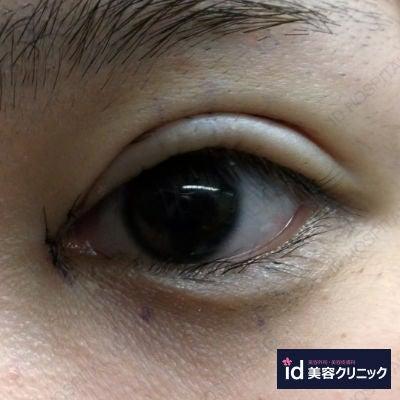 id銀座目整形症例写真