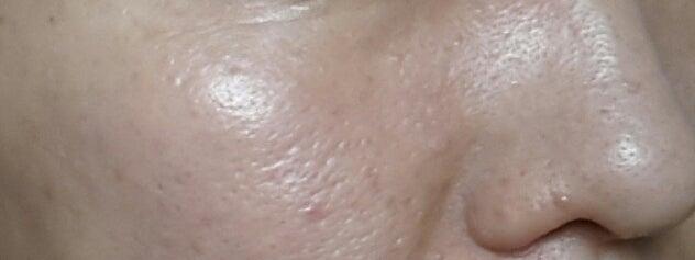 アヤナスワイエスラボ243日目の毛穴写真