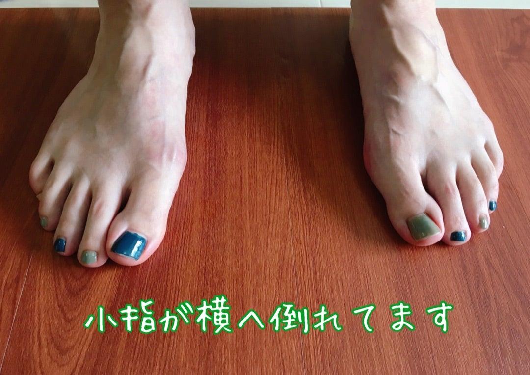 爪 法 足 の 対処 の が 親指 横 の 痛い