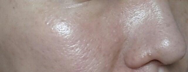 アヤナスワイエスラボ245日目の毛穴写真