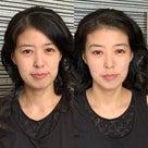 僅か30分の小顔施術♡美手技の記事より