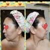 母、二回目フェイシャル☆の画像