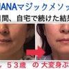 老化でたるんだ顔は自分でここまで改善できる!プチ整形も美容医療も必要なし。Kさんビフォーアフターの画像