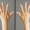 手の若返り(ハンドリバイブ)・50代女性・BMI 17の画像