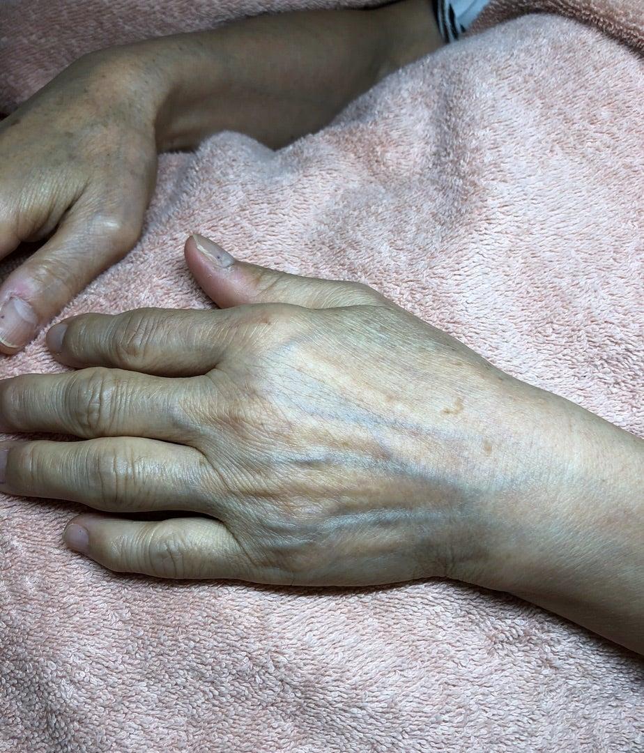 【シミを作らない肌へ】肌のターンオーバーを促してシミを防ぐ