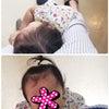 娘2歳〜あせもが良くならないの画像
