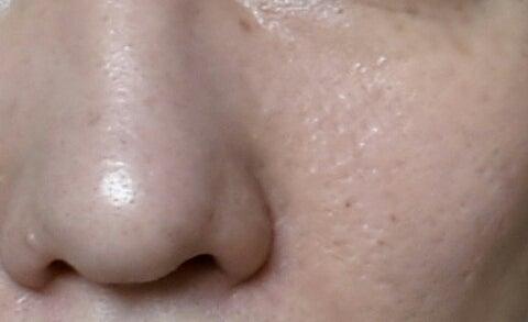 アヤナスワイエスラボ248日目の毛穴写真
