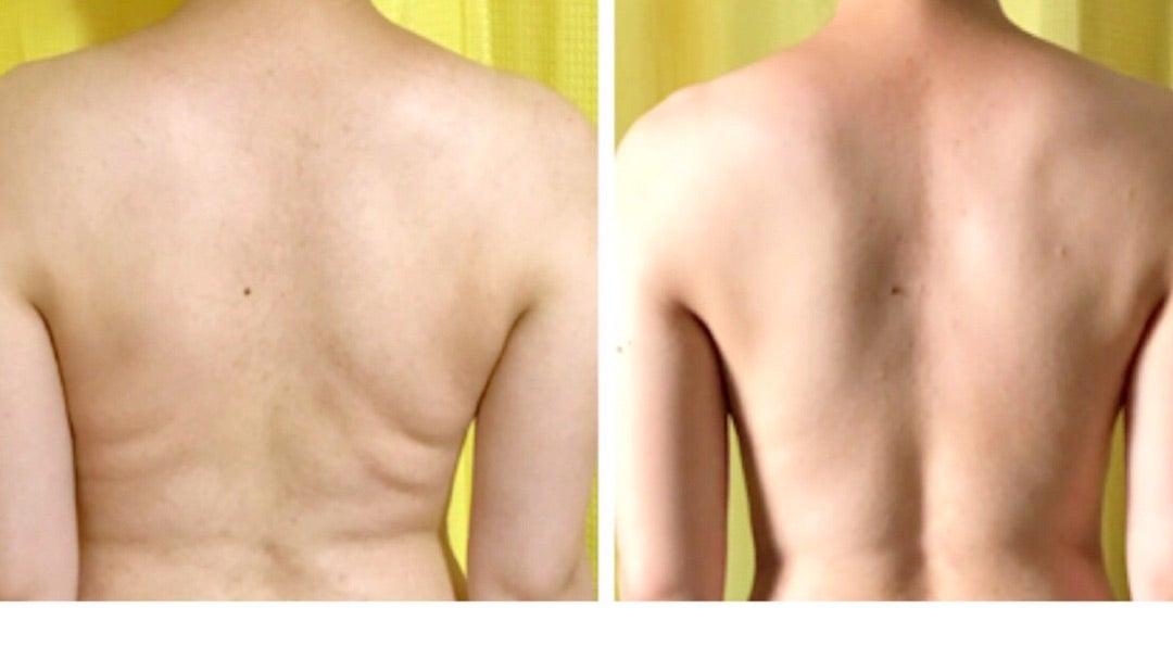 背中 の 肉 を なくす 「背中痩せ」したい!お肉がついてしまう原因と後ろ姿美人になるため...