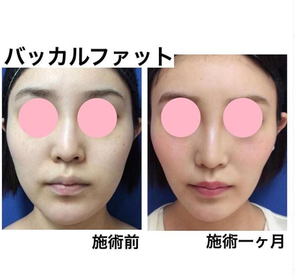 は と バッカル ファット バッカルファットのデメリット4つ!知っていれば避けられるバッカルファット除去リスク 美容外科・皮膚科、婦人科形成のルーチェクリニック