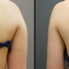 『二の腕・肩・太もも(内側+前側)のベイザー脂肪吸引』・20代女性・BMI 20・医療ダイエットの画像