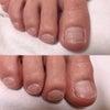 正しい足の爪の切り方とは?の画像