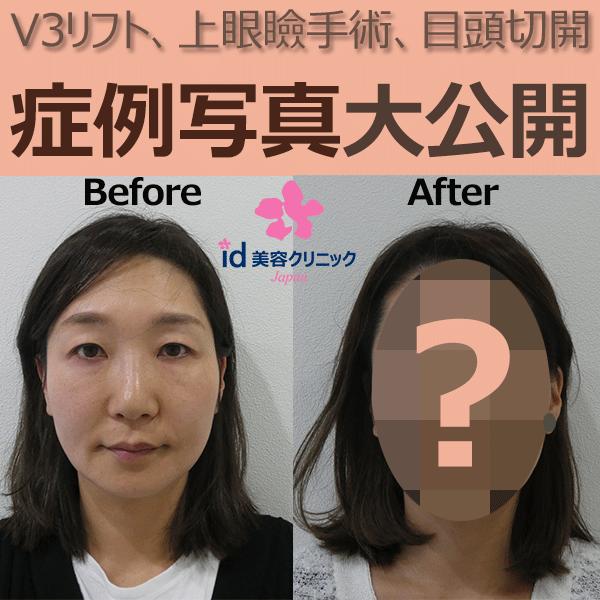 id美容クリニック症例写真