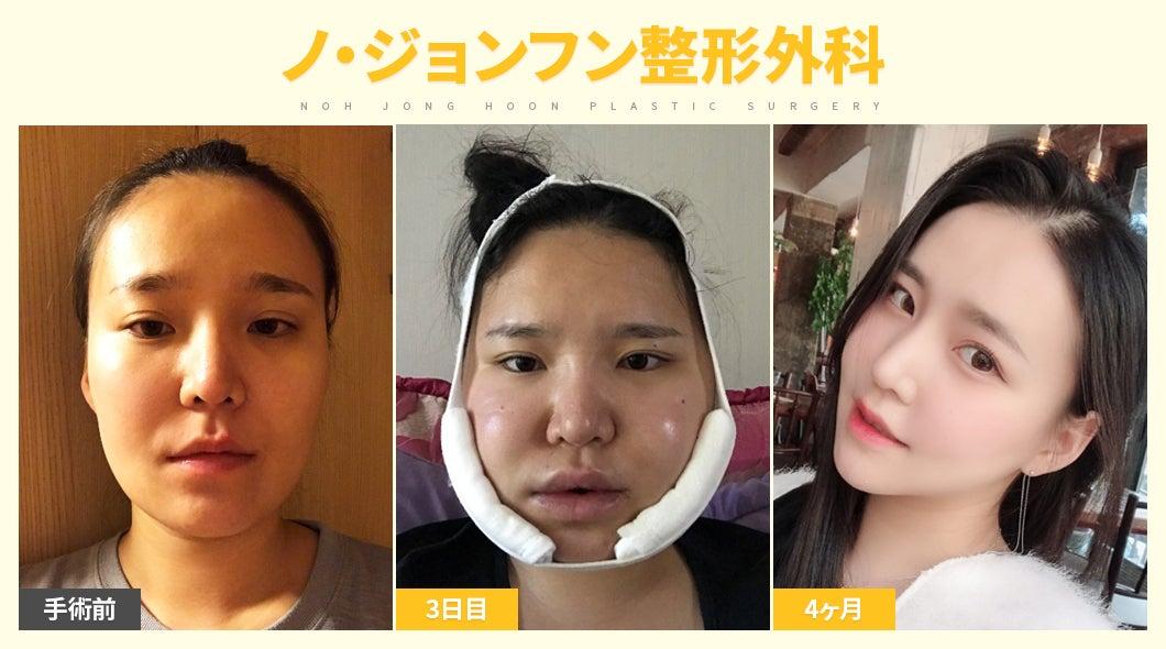 アキ子 整形 外科 和田