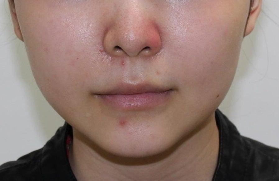 23歳・女性 エラのボツリヌストキシン注射の記事より