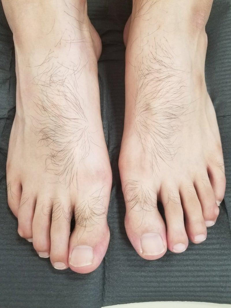 脱毛》男性 足の甲指 | 新潟市南区 白根 ネイルサロン 薄田笑子