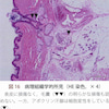 ミラドライとビューホットの違いについて検証④ 医学論文から検証する その2の画像