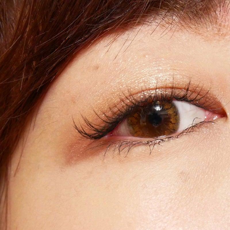 眼瞼下垂 人気記事 一般 2ページ目 アメーバブログ アメブロ
