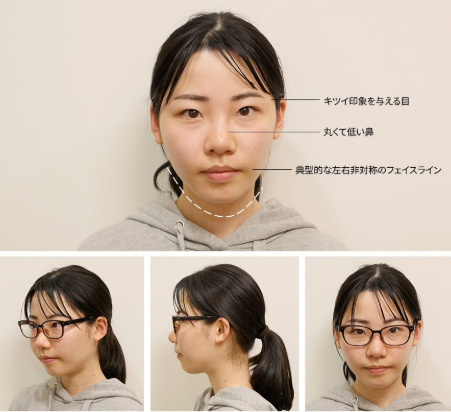 韓国id美容外科症例