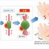 腱鞘炎の画像