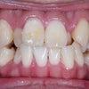 29歳 女性 主訴は凸凹 小臼歯3本抜歯 マルチブラケットによる治療が終了しました。の画像