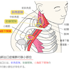 胸郭出口症候群の記事より
