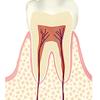 お口の豆知識その5 「むし歯の進行」の画像